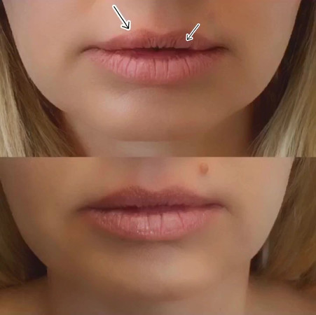 Approach to Old Lip Filler