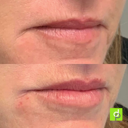 Filler in lips and chin