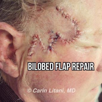 Bilobed flap repair