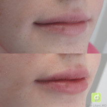 Lip filler in a young lip