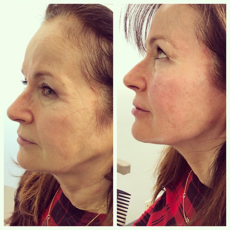 Other side of cheek and jawline augmentation