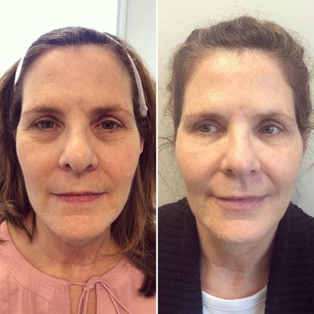 Cheek and jawline augmentation. Also lip filler and tear trough filler.  Botox. She got the full mother of the bride treatment.
