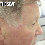 Flap repair - Find the scar