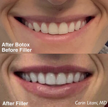 Lips filler and botox
