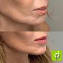 Lip and chin filler