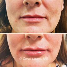 Subtle lip filler before/after