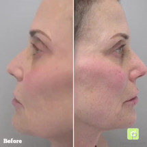 Cheek and jawline filler