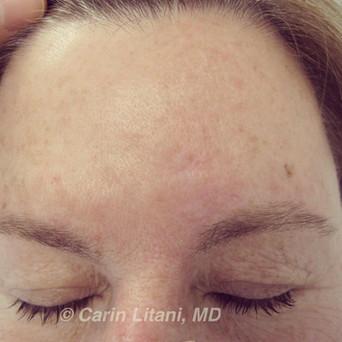 Clear forehead