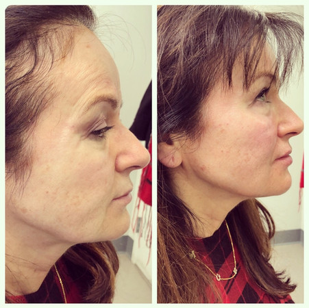 Cheek and jawline augmentation