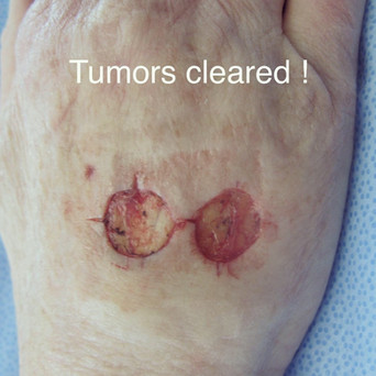 2 cancers, one flap! (2)