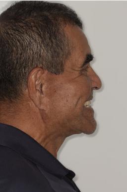 After All-On-4 Dental Implants Implant L