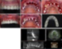 Implant Live Ceramic Implants.jpg