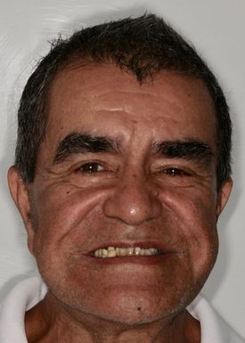 Before All-On-4 Dental Implants Implant