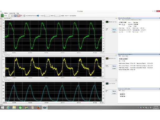Hans Rudolph, inc. Develops Ventilator Testing Kit in Response to COVID-19 Demand