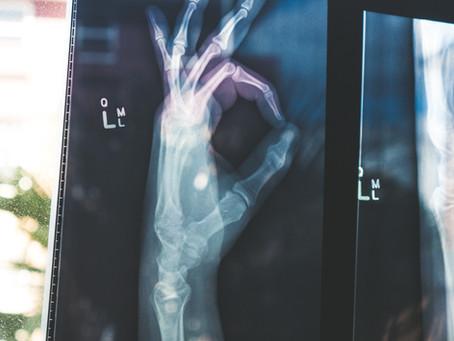 ARTHRITIS AWARENESS: Autoimmune Arthritis