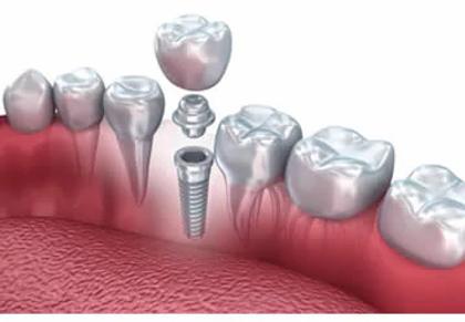 impianti-dentali.webp