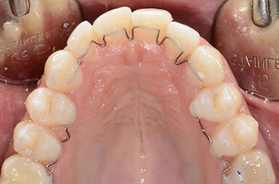 retainer-attivo-ortodonzia.jpg