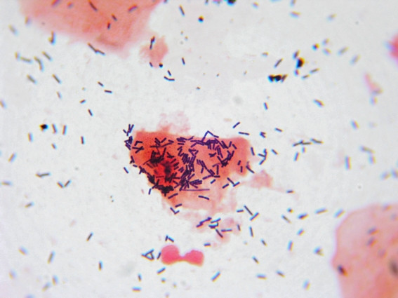 flora vaginal bacteriana microbiologia