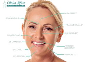 Reconoce las arrugas faciales