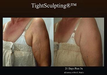 Fotona_TightSculpting-Arm1.png