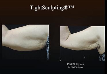Fotona_TightSculpting-Arm2.png
