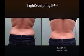 Fotona_TightSculpting-Back1.png