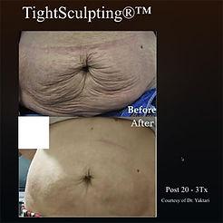 Fotona_TightSculpting-Stomach2.jpeg