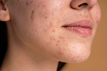confident-young-woman-with-acne-close-up.jpg