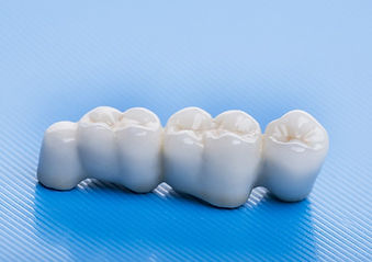 Ceramic-Crowns.jpg