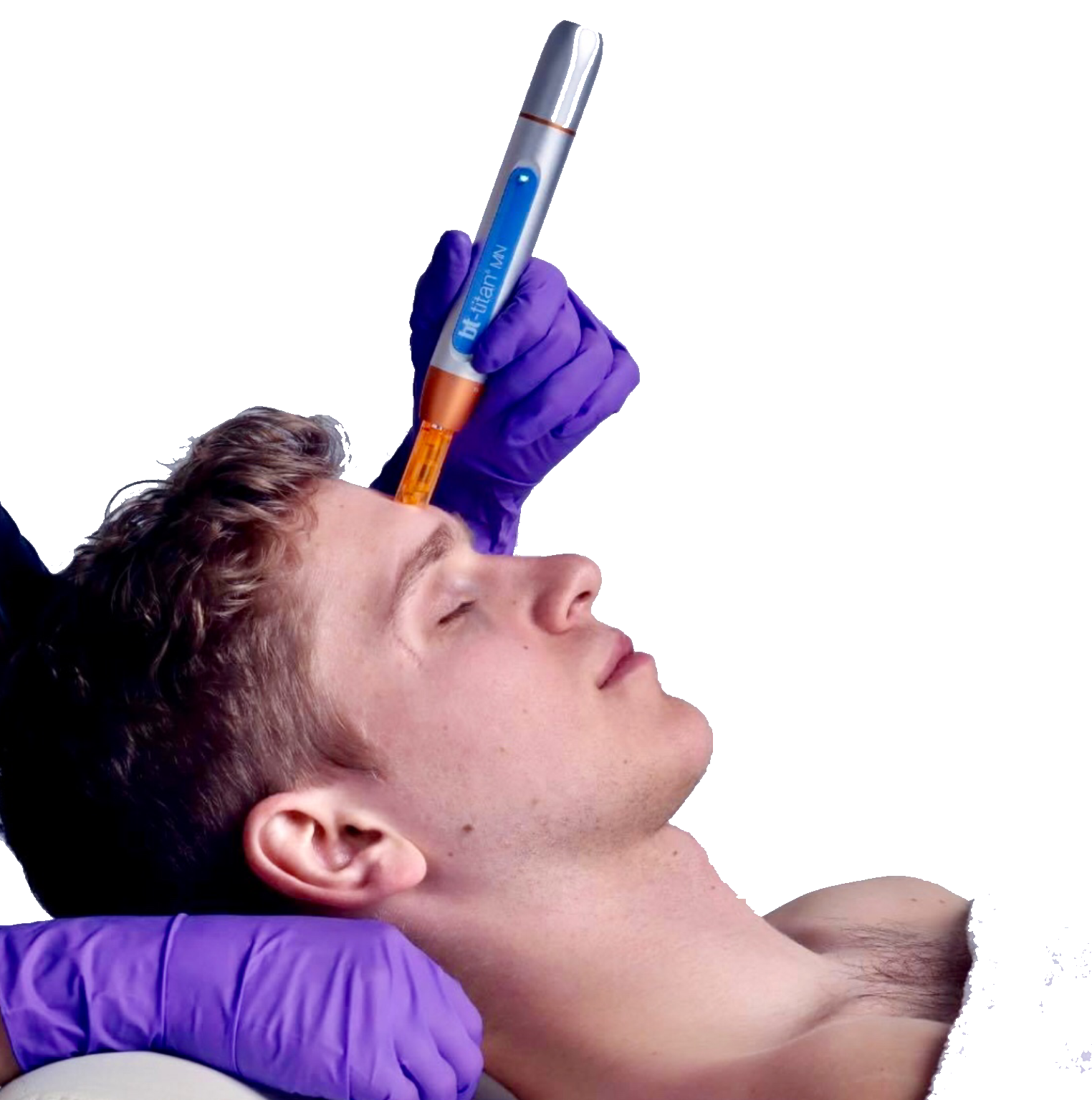 Nano-Needling