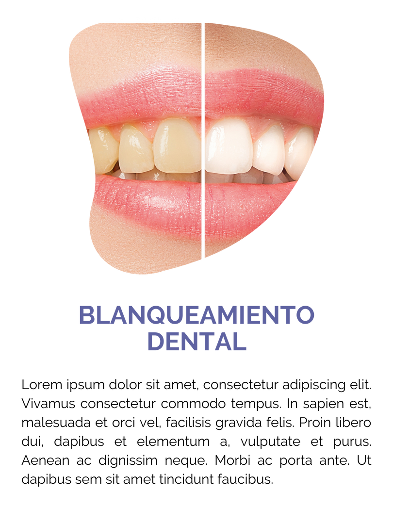 BLANQUEAMIENTO