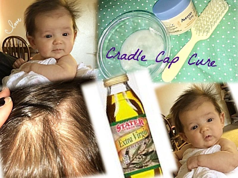 Cradle Cap Cure