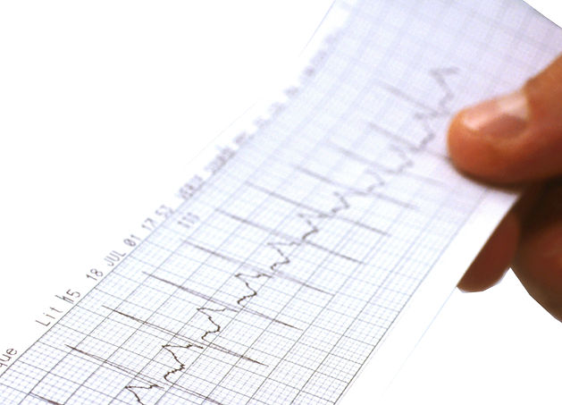 Eletrocardiogama - Médico  Cardiologista- Laudo online - Cardio Online