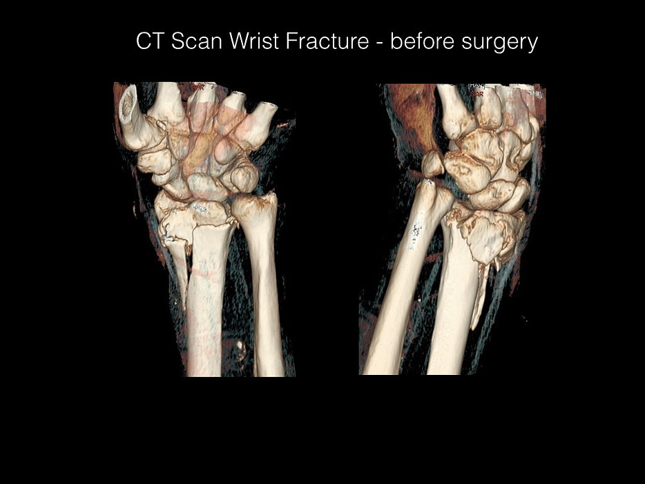 Cayman wrist fracture before and after