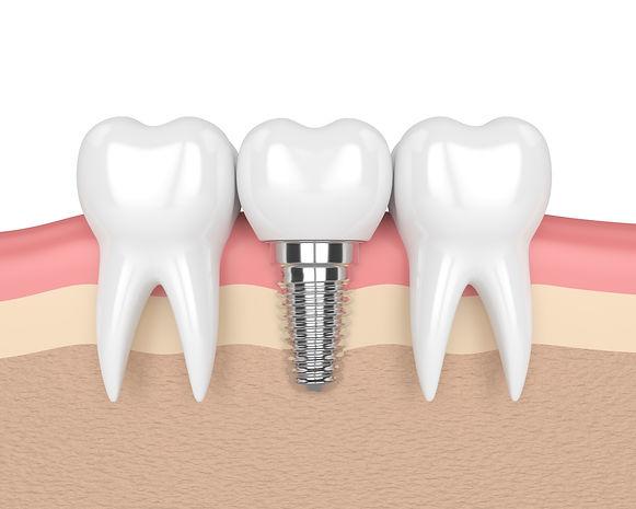 Dental-Devotion-dental-implants