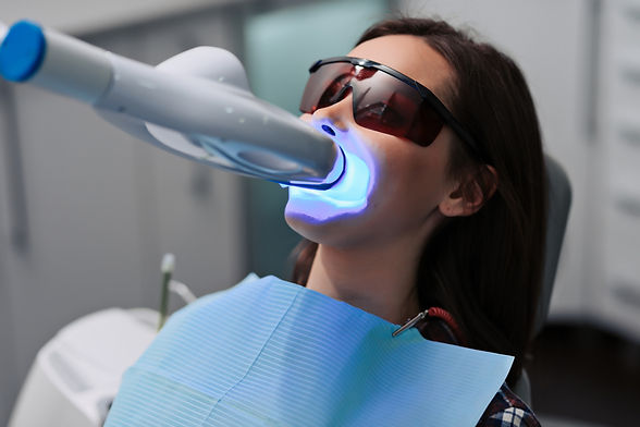 Dental Devotion - Teeth Whitening