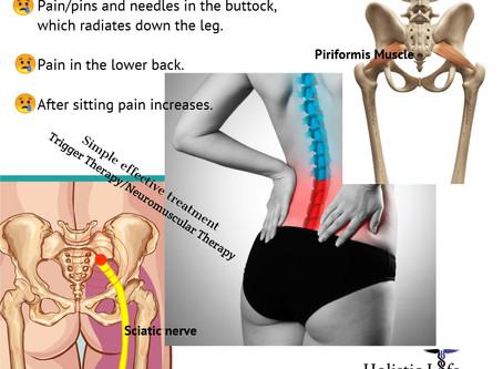 Sciatica or Piriformis Syndrome