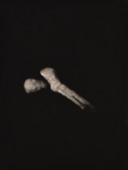 Bone II