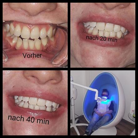 Zahnbleaching-Kosmetikstudio Elina--Twistetal-Korbach-Waldeck-Frankenberg-Arolsen