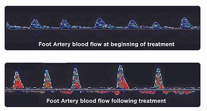 Blood flow improvement after treatment