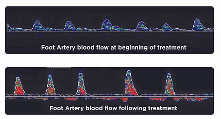 Improvement in blood flow after Niagara treatment