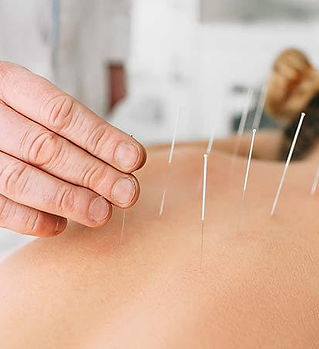 accupuncture provider apmi wellness center bethesda md