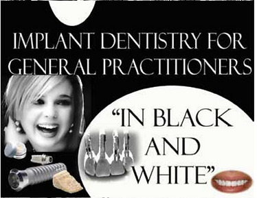 Implant Dentistry in Black & White for General Practicioners