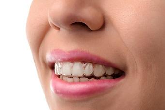 aparat dentar invisalign.jpg