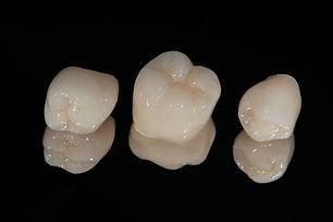 coroane dentare.jpg