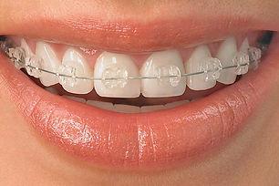 aparat dentar ceramic