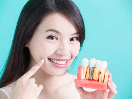 De ce să alegi un implant dentar? Descoperă avantajele.