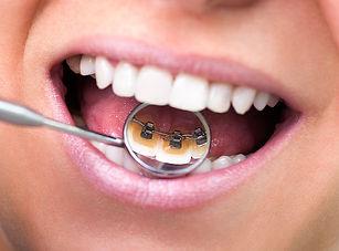 aparat dentar incognito.jpg