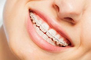 aparat dentar safir.jpg