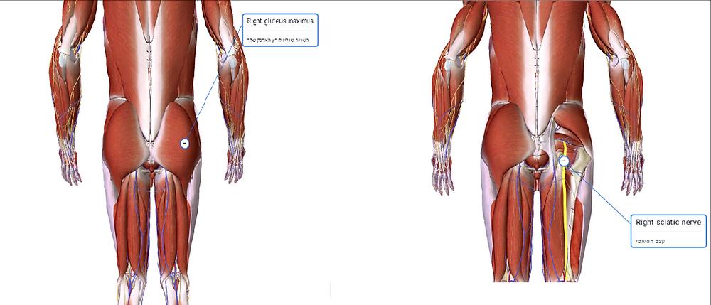 ארנק בכיס האחורי עלול לגרום למתח בשריר הגלוטאוס וללחץ על העצב הסיאטי